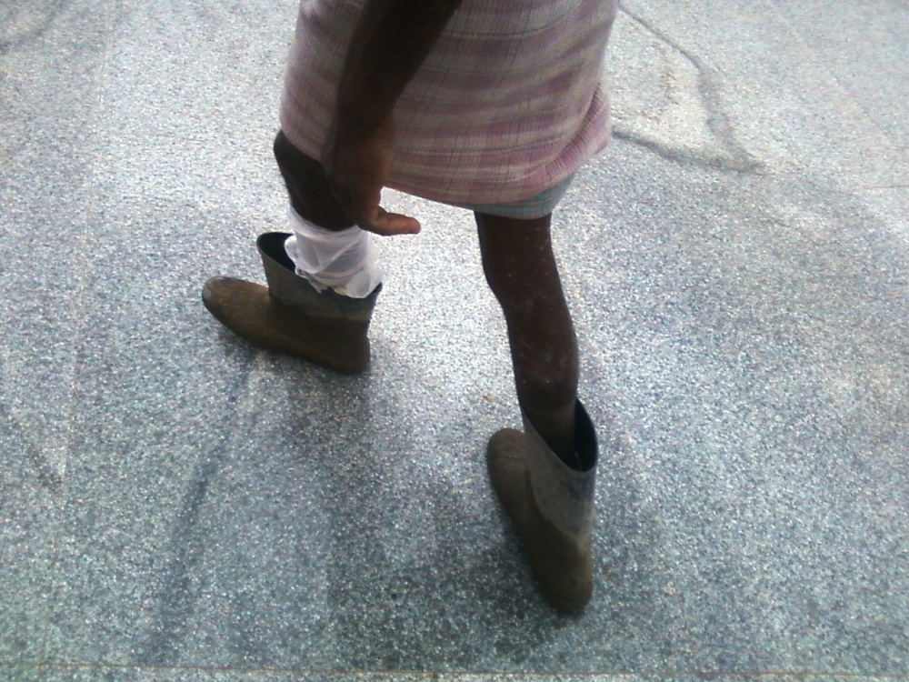 A construction worker wearing an oversized pair of gum boots only because he has an injury on his shin (at a site in PES Engineering College, Electronic City, Bangalore)